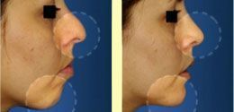 Procedures related to rhinoplasty